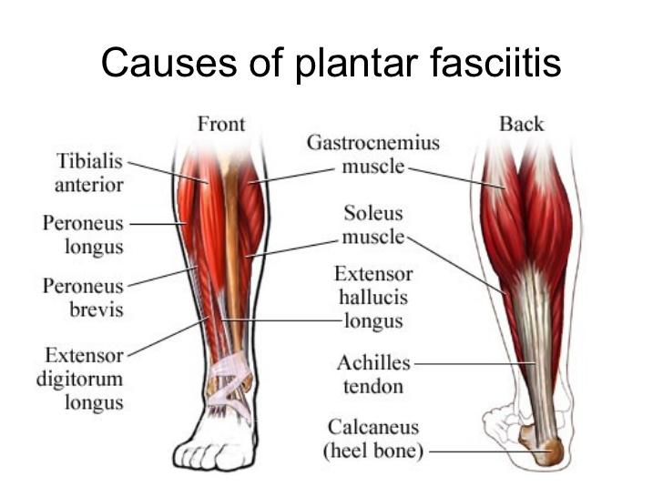 plantar-fasciitis-presentation-10-728.jpg%3Fcb%3D1330773505